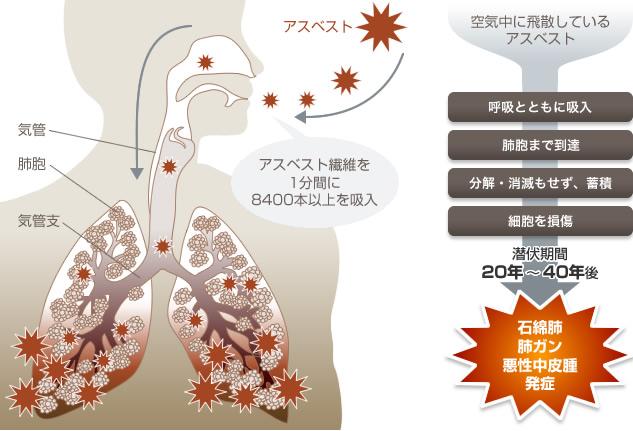 石綿健康診断